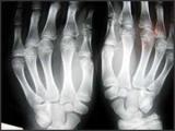 Что делать, если ваш ребенок родился с ненужных пальцы рук или ног?